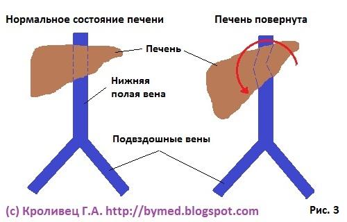 Мази при лечение варикоза ног
