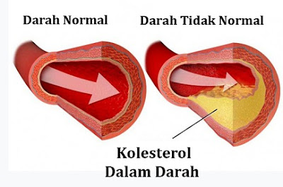 kolesterol darah