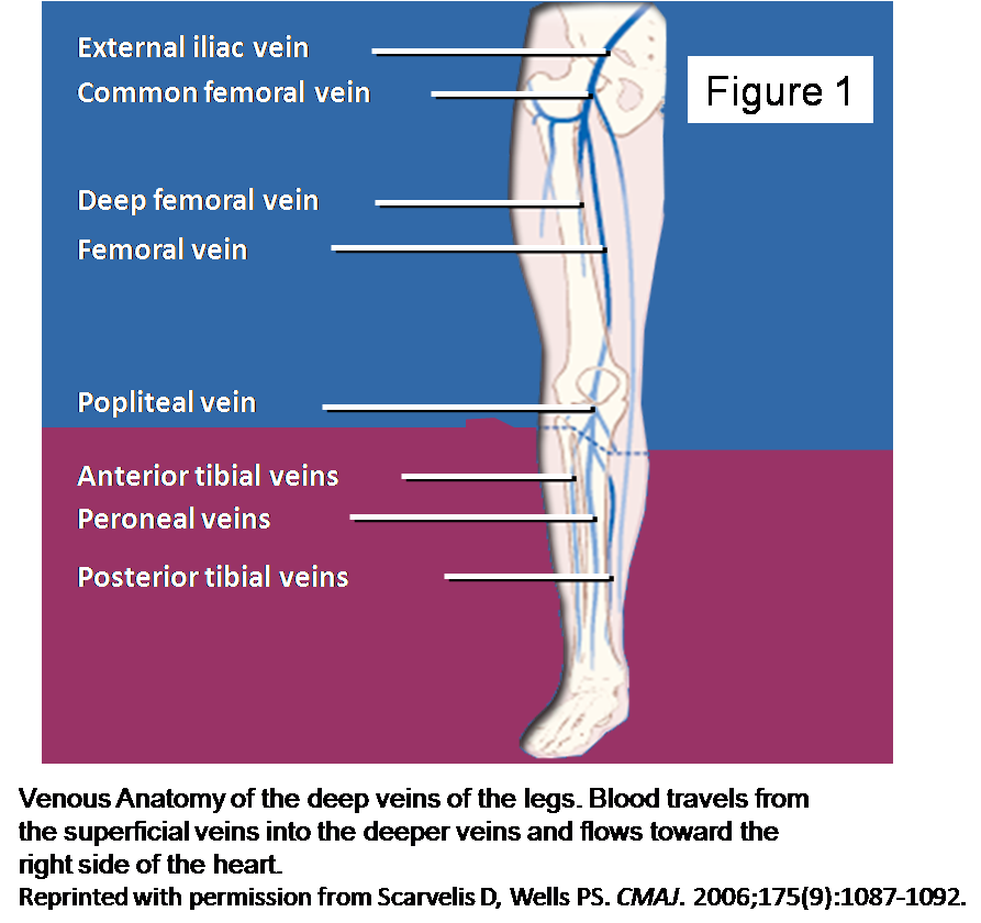 HEALTH FROM TRUSTED SOURCES: Venous thrombosis