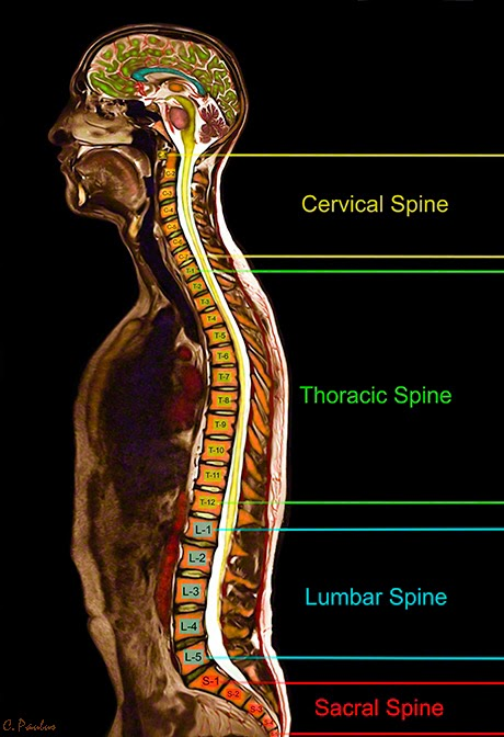 Color MRI of the Whole Body showing the different Sections of the Spine