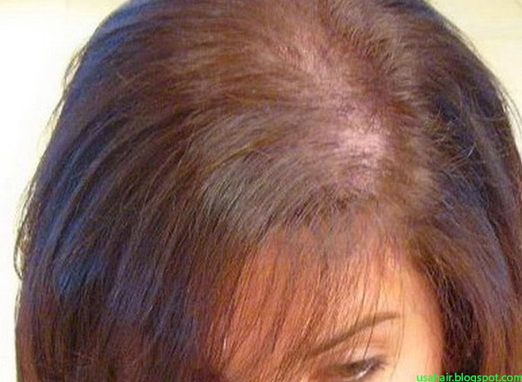 Hair Styles Hair Problems The Causes Of Female Pattern Baldness Unique Female Pattern Baldness Pictures