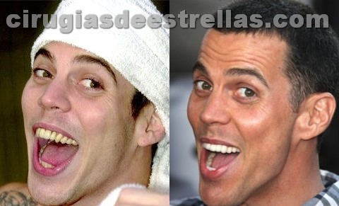 Steve-O antes y despues