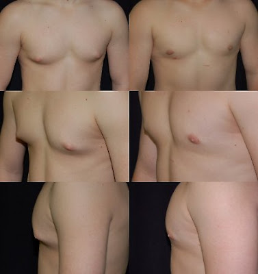Plastic Surgery For Gynecomastia In Men