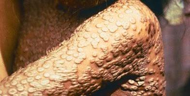 virus-smallpox