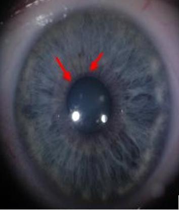 Segue uma foto de uma íris onde pode se observar o referido sinal