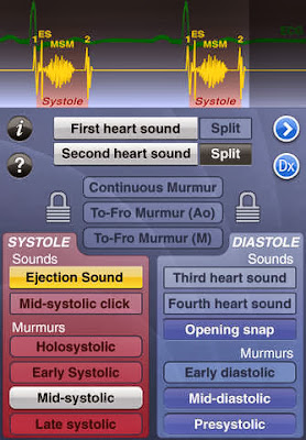 heart sounds murmur ecg