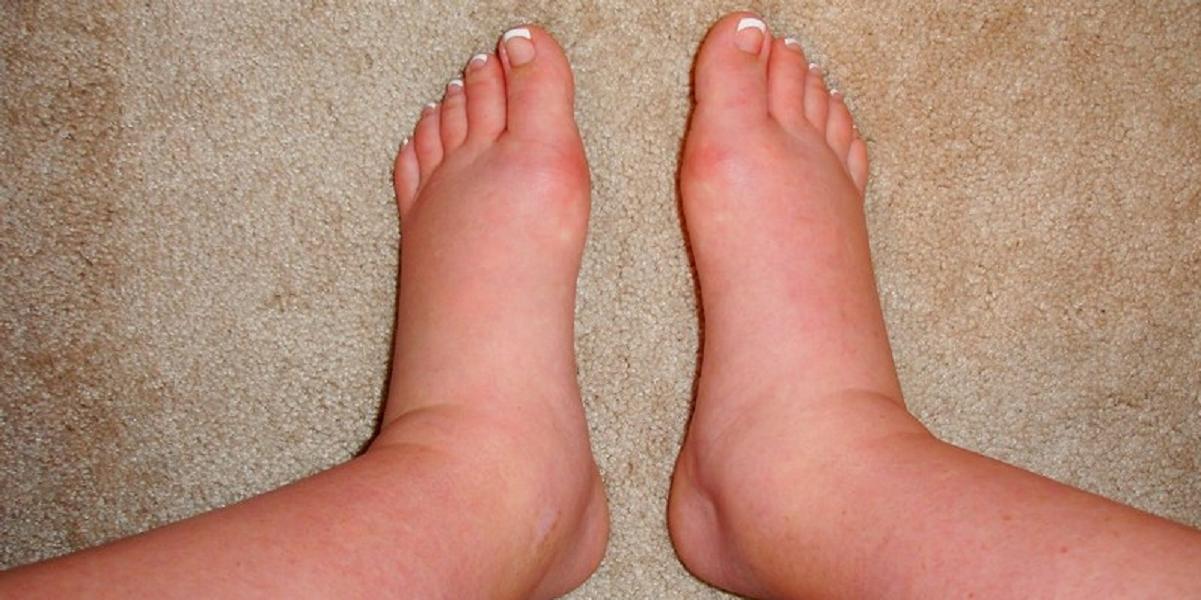 Как снять отек ног у беременных 92