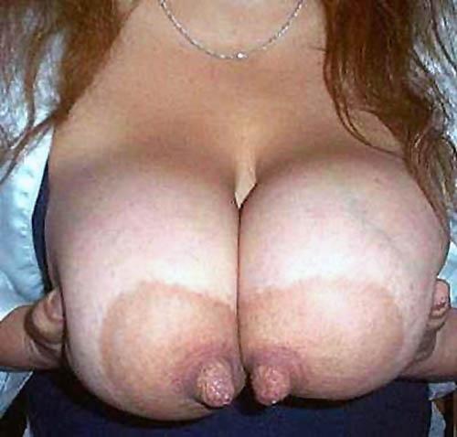 riesennippel
