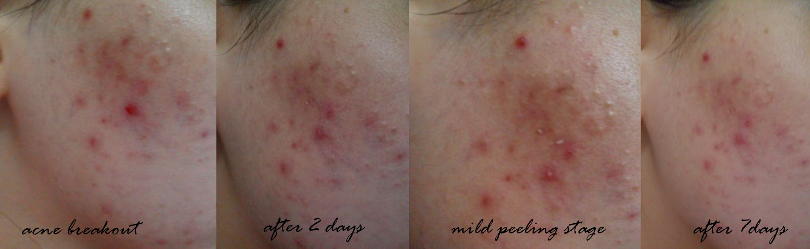 Solutions for acne on back