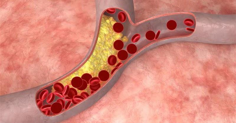 холестерин 7 как снизить