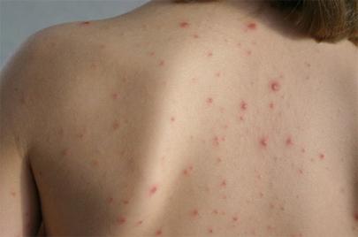 Osip i promjene na koži kod djece - Foto-vodič