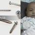 Bayi 10 Bulan Maut Tertelan Skru 2 Sentimeter