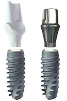 avance implantes dentales