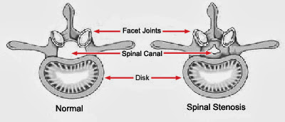 Spinal Stenosis Causes, Symptoms, Diagnosis, Treatment