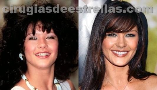 Catherine Zeta Jones antes y después