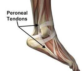 Peroneal