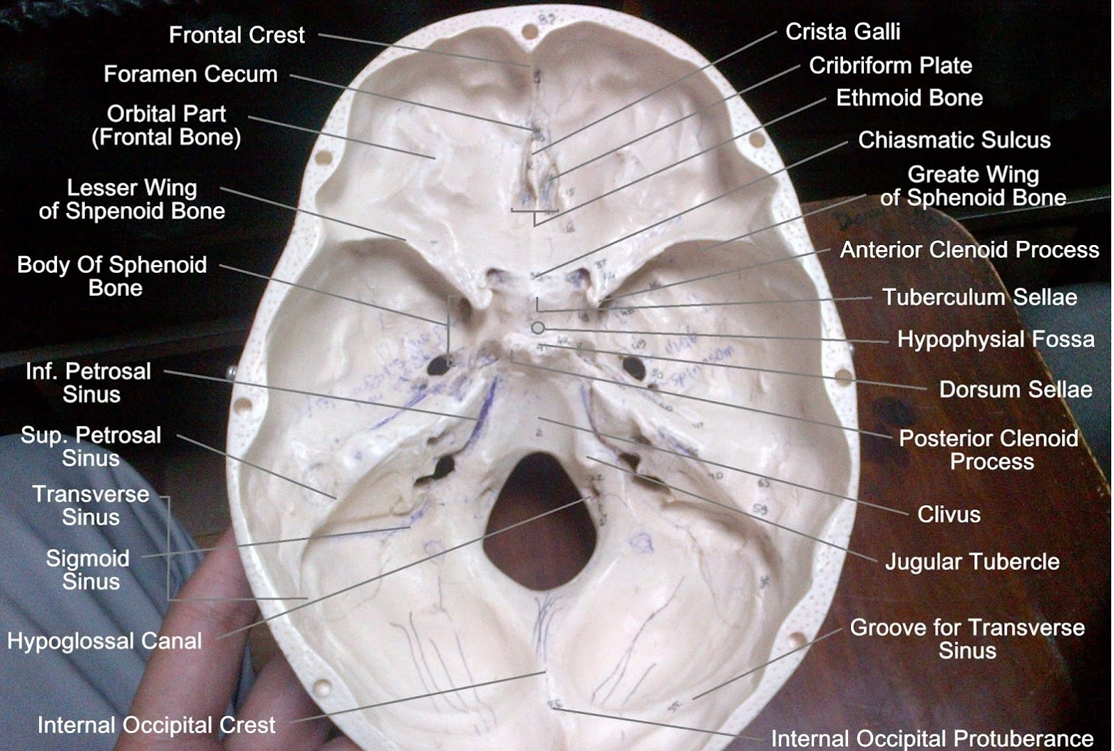 Anatomy Made Easy : Base of the Skull