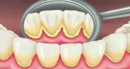 Descubre-5-Recetas-sencillas-para-Extracción-de-la-placa-dental-Naturalmente
