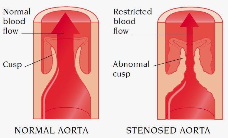 Aortic Stenosis Nursing