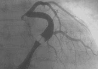 Road map of the Venous Network Coronary Sinus