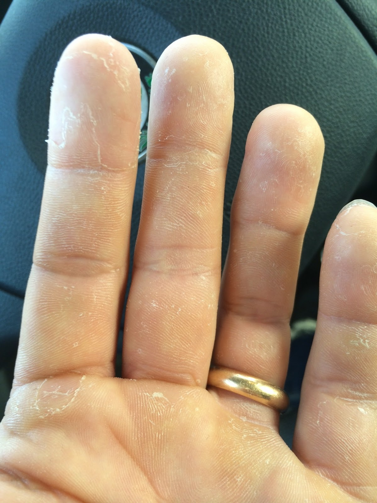 ömsar skinn på händerna