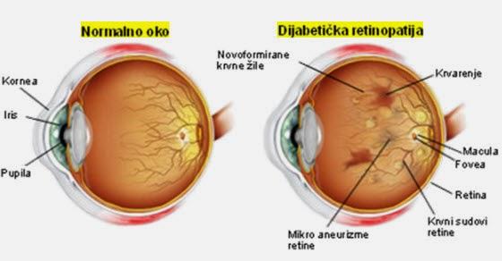 dijabetička retinopatija simptomi i lečenje