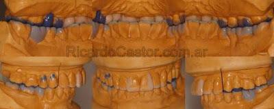 encerado de diagnostico dental