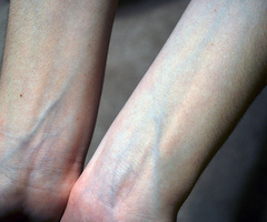 very visible blue veins