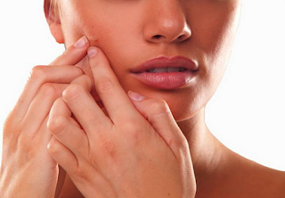Consult a dermatologist for online acne treatment