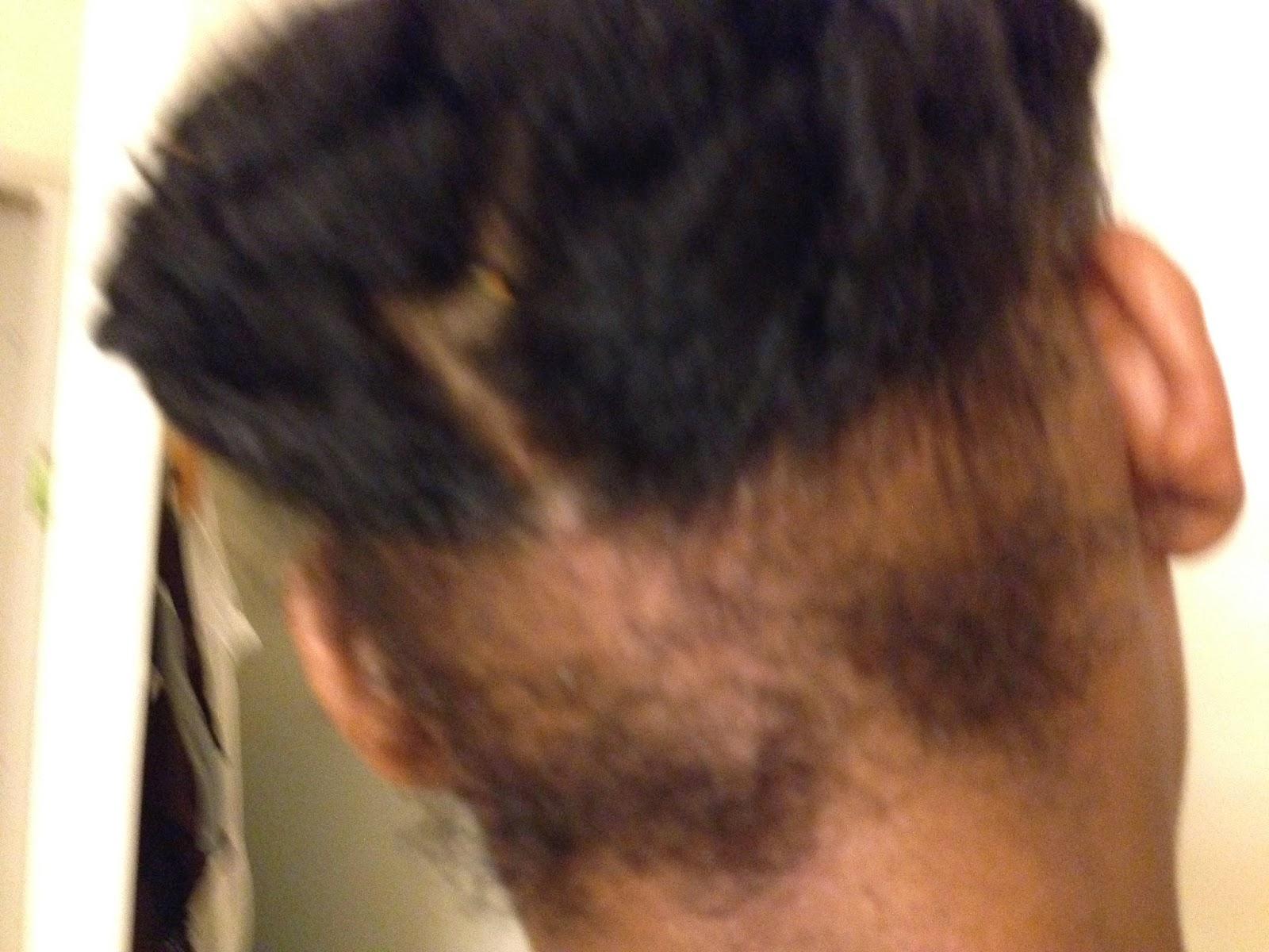 alopecie traction repousse