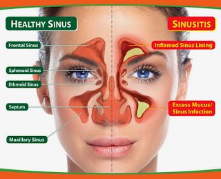 Cara Mengobati Penyakit Sinusitis dengan Obat Herbal