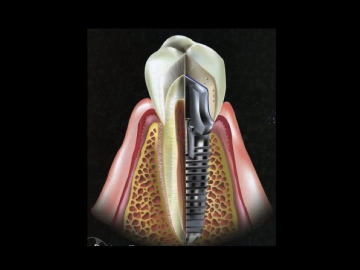Operatoria Dental V: 2011