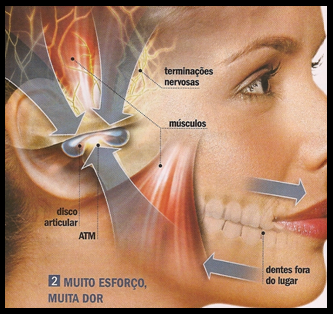 <b>Articulação</b> temporomandibular (ATM) ~ Personal High Performance 2014
