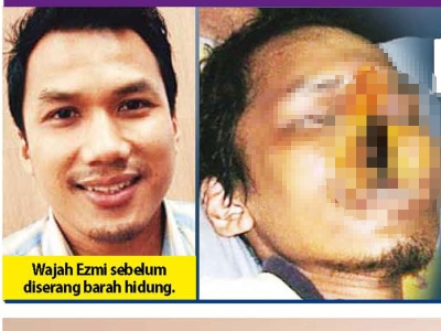 Bekas Pemain Selangor Ezmi Derita Kanser Hidung