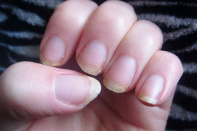 How to harden nails