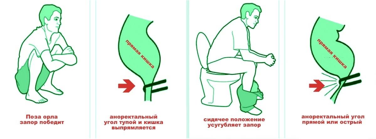 Первый секс желание пойти в туалет