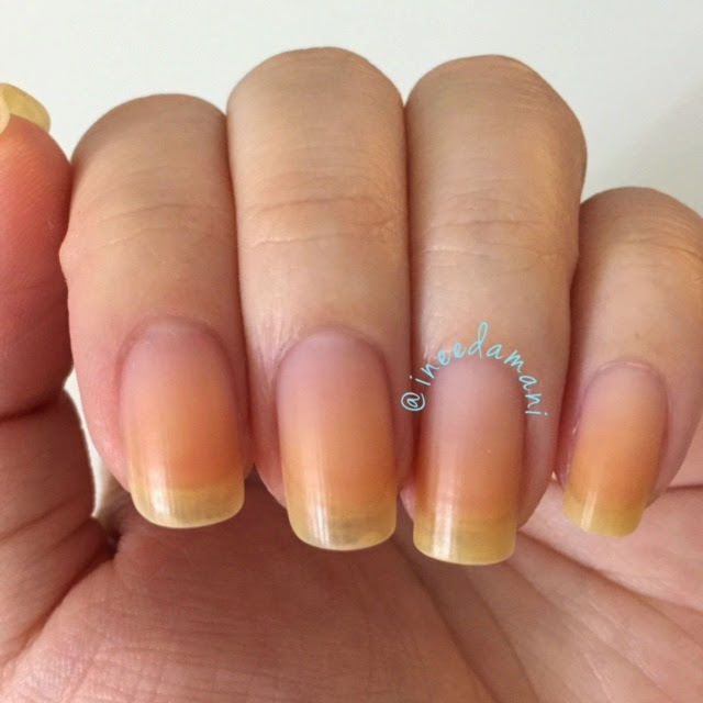 how to get rid of yellow stained nails