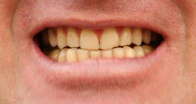 Cara Memutihkan Gigi Dengan Mudah Dan Alami Kesehatan Jasmani Dan
