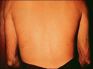En esta imagen se representa una espalda con estrongiloidiasis