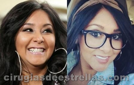 snooki antes y despues