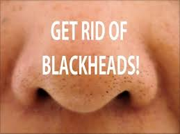How to get rid of blackheads? (Home remedies for blackheads)