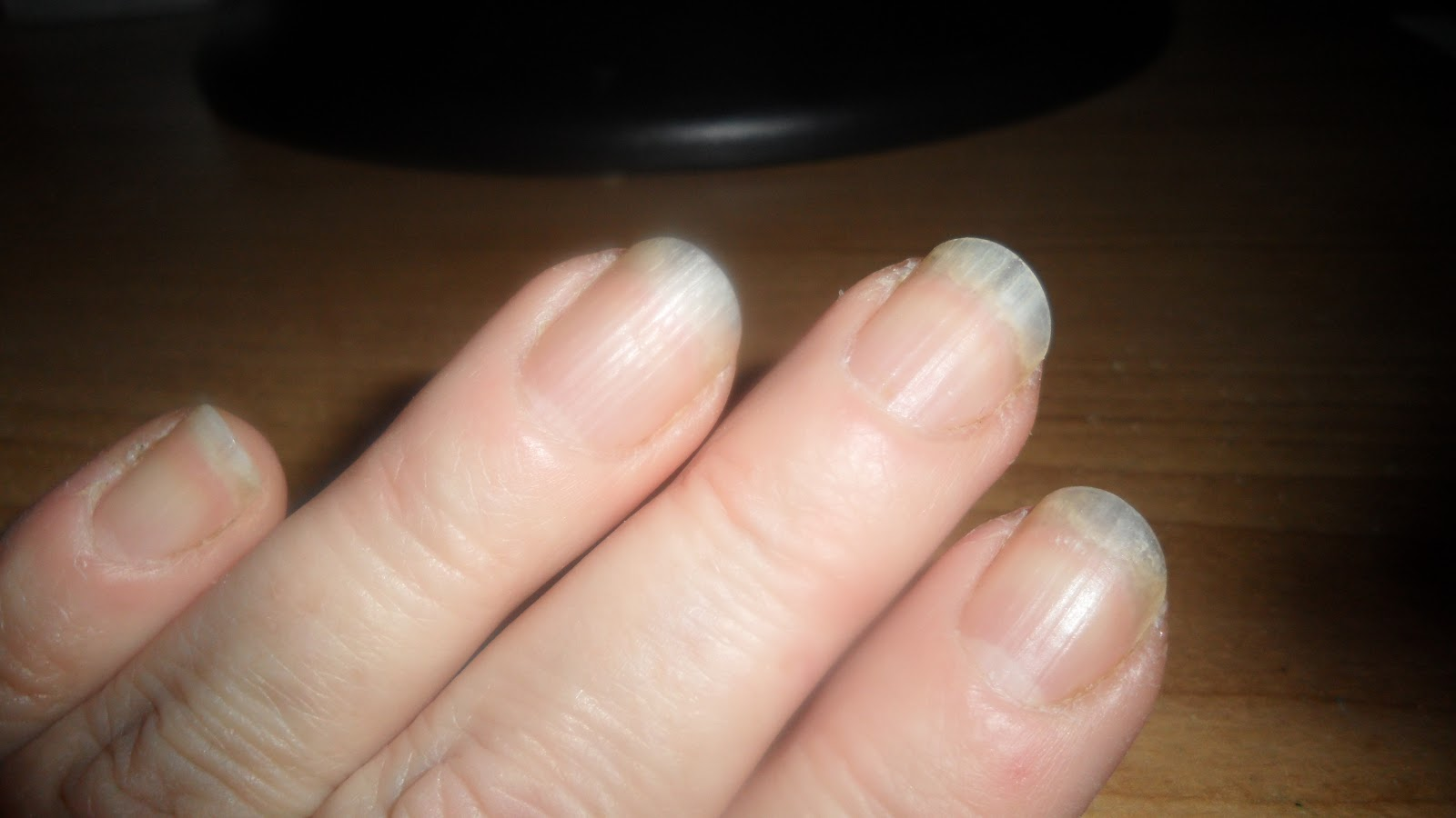 Beauty Blog by Lisa - TIPS from head to toe!: From acrylic damaged