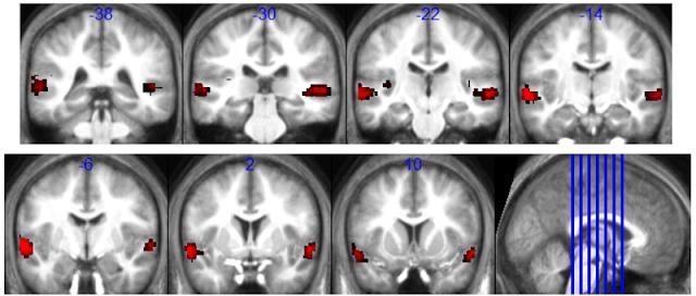 Brain Area Identified That Integrates Speech's Rhythms