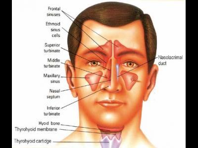 Natural Treatment Sinusitis Symptoms