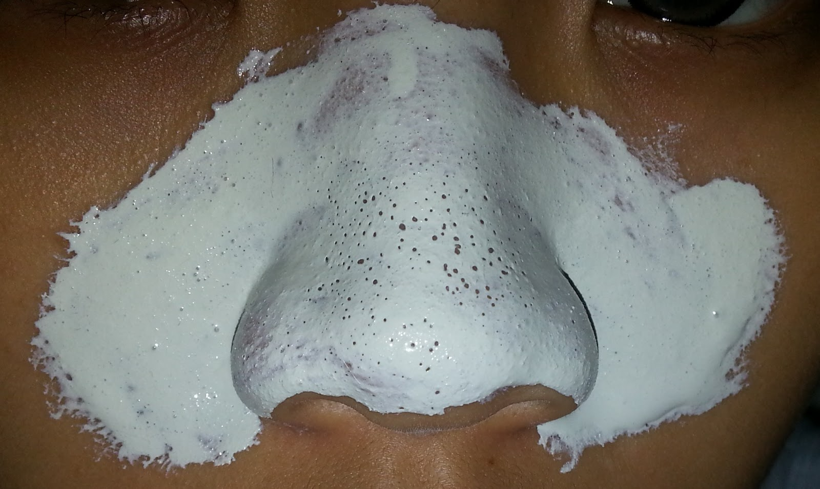 How Can I Remove Blackheads Naturally