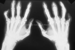 Apprendre à reconnaître arthrite symptome psoriasique