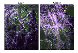 Breast Tissue In Obese Women Promotes Tumors