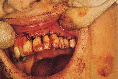 Periodontal Surgery Periodontology