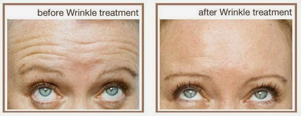 Anti ageing clinic Sydney