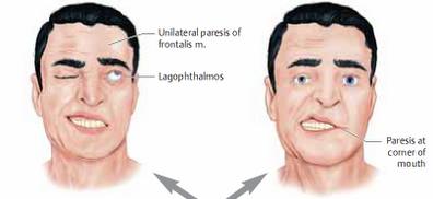 Gejala-Gejala Penyakit Pada Penderita Stroke